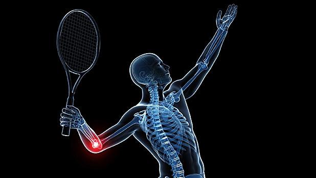 Une douleur au coude: changez votre raquette